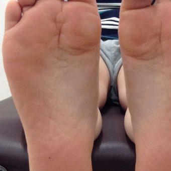 足底の痛み(足底腱膜炎)に対するインソール処方
