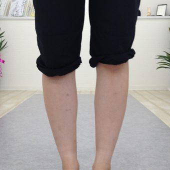 急性の膝関節痛に対するボディケアとセルフトレーニング指導