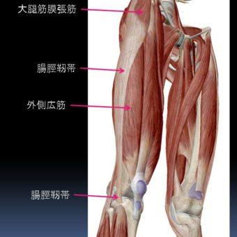 ランナーの下肢外側の痛みに対するインソール
