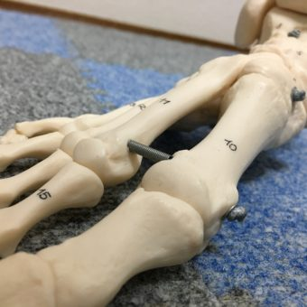 足部セミナー2017 @森ノ宮医療学園専門学校 第2回開催報告(全3回)